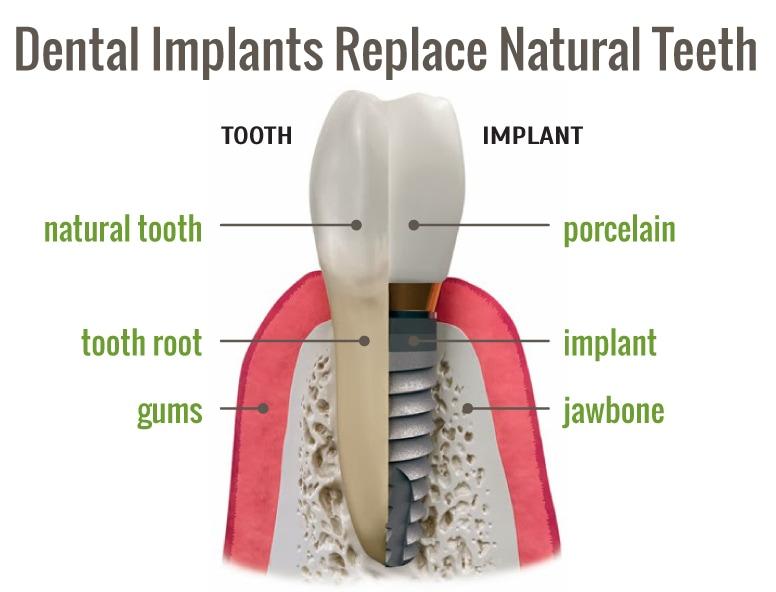 Northshore Dental-Tooth-Implant-Image