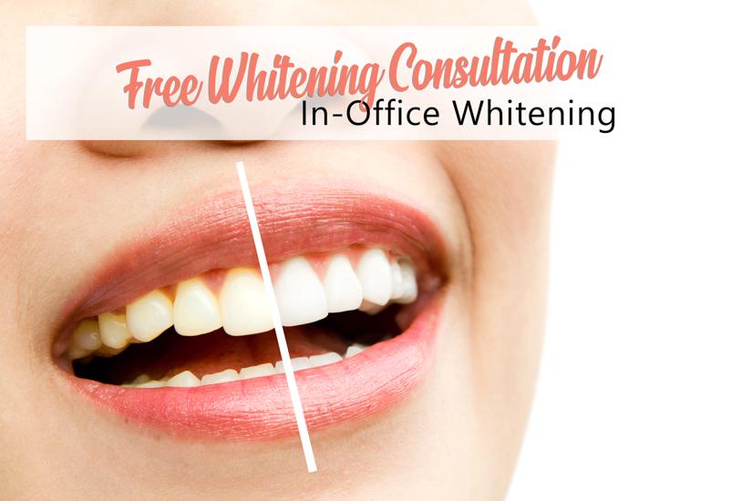 Northshore Dental Teeth Whitening Header Image (1 of 1)